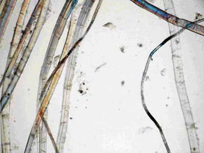 <dl><dt>Tela original de<em>El Coloso</em></dt><dd>Vista longitudinal de varias fibras a 200 aumentos</dd><dd>Todas ellas tienen la estructura característica del lino y son de diversos grosores</dd></dl>