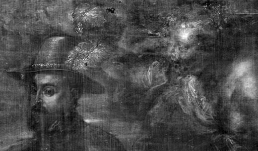 <p><em>Fig.1</em>. Detalle de la radiografía</p>